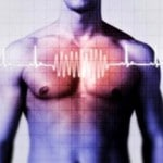 Cardiac-arrhythmia-150x150